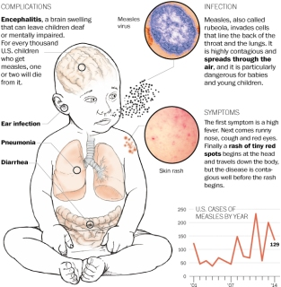 http://www.washingtonpost.com/national/health-science/how-to-recognize-measles/2014/04/24/27396486-cc1c-11e3-93eb-6c0037dde2ad_graphic.html